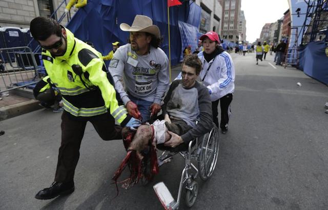 Jeff Bauman a perdu ses deux jambes lors de l'attentat de Boston et en est devenu le symbole médiatique grâce à cette photo - (CC) Charles Krupa
