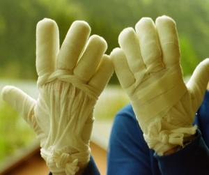 Les mains de Christophe Lachnitt après son accident d'alpinisme au cours duquel il subit de graves brûlures et dermabrasions (chairs rongées par les brûlures) aux doigts et paumes, la fracture de deux vertèbres et la compression d'une troisième ainsi que de multiples contusions sur l'ensemble du corps